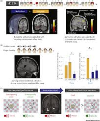 the sleeping cerebellum trends in neurosciences