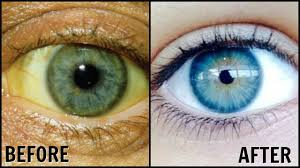 How To Wash Bright Colors - how to whiten the whites of your eyes naturally get rid of