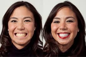 laser teeth whitening skinologie medical spa beaumont
