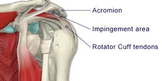 Tendons In The Shoulder Diagram Calcific Tendonitis The Reading Shoulder Unit