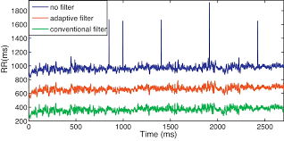 application of an automatic adaptive filter for heart rate