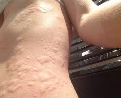 tattoo ink allergic reaction big tattoo planet community forum