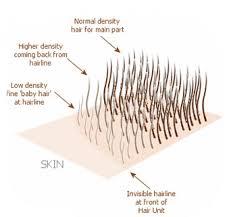 hair transplant calculator the technics to reach a perfect transplantation density