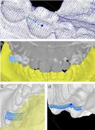 modelling of mandibular movement pdf download available
