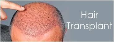transplant hair second round draft is hair transplant a success or failure quora
