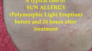 a of sun allergy before and 24 hours after treatment