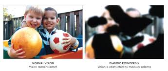 Diabetic Blindness Eyedocs Diabetes And Your Vision