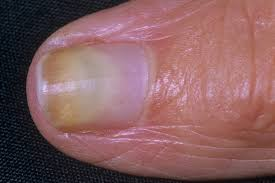 Wide Nail Beds Nail Abnormalities Nhsuk