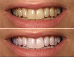 How To Whiten Kids Teeth Hillsborough Family Dental Centre Tooth Whitening