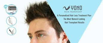 hair transplant in yono in china an affordable and quality