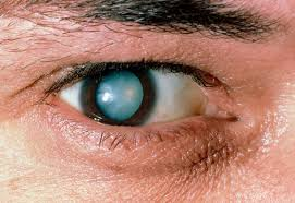 Can Cataracts Cause Blindness Cataracts Diagnosis And Treatment