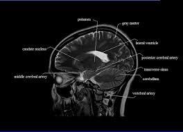 Neck Cross Sectional Anatomy Cross Sectional Anatomy Mri Brain Sagittal Anatomy Free Mri