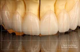 dental design digital smile analysis and design dental design