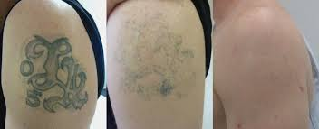 the tattoo removal clinic private medical aesthetics clinic in