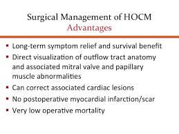 Anatomy Slides New Approaches To The Surgical Management Of Hypertrophic