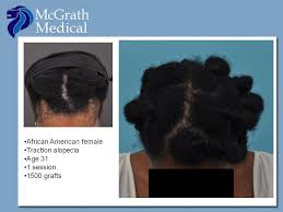 african american hair transplant traction alopecia hair transplant in austin tx