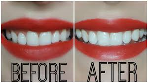 crest supreme whitening strips crest 3d white whitestrips luxe supreme flexfit results winners