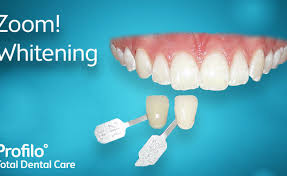 whitening stunning bleaching teeth zoom teeth whitening before