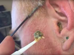 how to get wax out of a candle the best ways to get rid of earwax according to a doctor