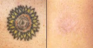 tattoo removal service newcastle nsw 4d tattoo removal