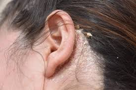 What Can I Do For My Hair Loss Dandruff Causes And Treatments