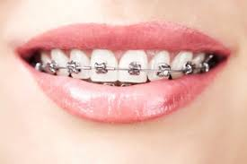 vire teeth your teeth with these braces options for adults