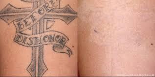 healing process after tattoo removal 1000 geometric tattoos ideas