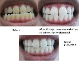 crest 3d white whitestrips with light review just me being me crest 3d whitestrip professional effects