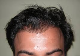 prescreened hair transplant physicians hair kraze hair transplant