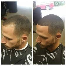 different types of receding hairlines best hairstyles for guys with receding hairlines hairstyles