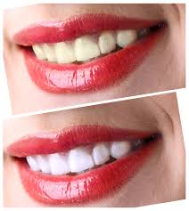Teeth Whitening Colorado Springs A Dentist U0027s Guide To The Sapphire Teeth Whitening System King
