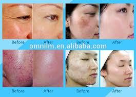 light treatment for skin led l pdt skin rejuvenation equipment for beauty salon red light