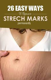 best 25 stretch mark removal ideas on pinterest face marks