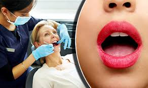 21 Diseases The Doctors Haven - an ulcer in the mouth could be a sign of potentially deadly cancer