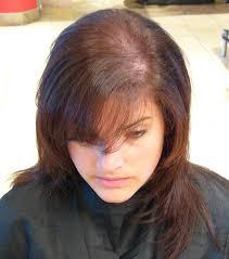 Women Hair Loss Treatment Alternative Treatment For Female Hair Loss New Hair Style