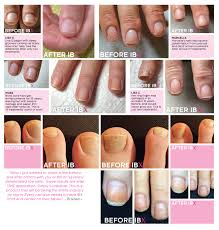 introducing ibx u2013nail strengthener and repair know your nails