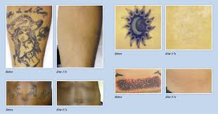astanza trinity laser tattoo removal machine best tattoo removal