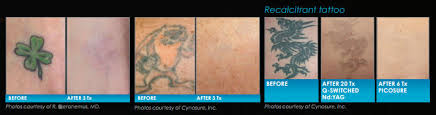 laser tattoo removal treatment in michigan
