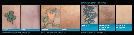 laser tattoo removal treatment in michigan