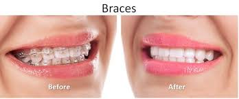 Comfort Dental Before And After Pictures Pensacola Fort Walton Beach Fl