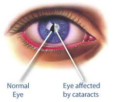Can Cataracts Cause Blindness Cataracts The Leading Cause Of Blindness For Those 55 Years And