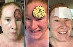 led light skin cancer new skin cancer drug could stop melanoma spreading to other organs