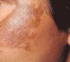 Light Spots On Face Light Brown Spots On Skin Pregnancy The Best Skin Of 2017