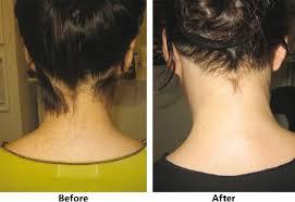 hair removal newimagemedspas