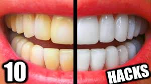 10 simple life hacks for teeth whitening everyone should know diy