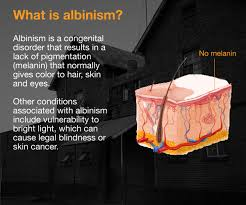 What Causes Eye Blindness What Is Albinism And What Causes It Malawi Al Jazeera