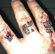 brisbane man left with u0027blistered bleeding hands u0027 after laser