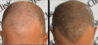 pics of scalp micropigmentation on people with long hair home dermimatch hair clinic scalp micropigmentation