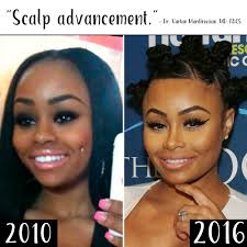 tyga hair transplant plastic surgery see blac chyna s body change over time 2 in touch