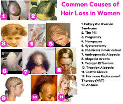hairr styles for woman with alopica the top 10 causes of hair loss in women and what you can do
